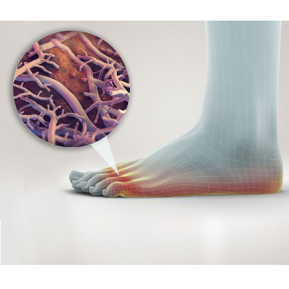 Five Things to Know About Foot Fungus