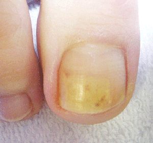 Footlogix - What To Do About Toenail Fungus?