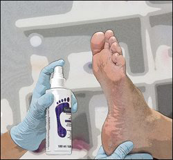 illustration of nail tech wearing gloves spraying Footlogix Callus Softener on a foot
